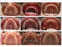 稲毛エルム歯科クリニックのブログ-上あごの拡大の例
