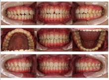 開咬の治療